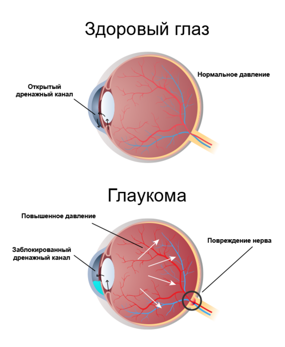https://glaucoma.ru/images/article/1577114615.png